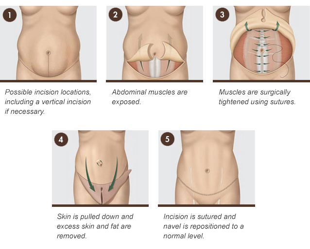 Body sometimes simply dieting and exercising are not enough to take care of waistline problems in such cases a patient may wish to consider a tummy tuck or ccuart Image collections